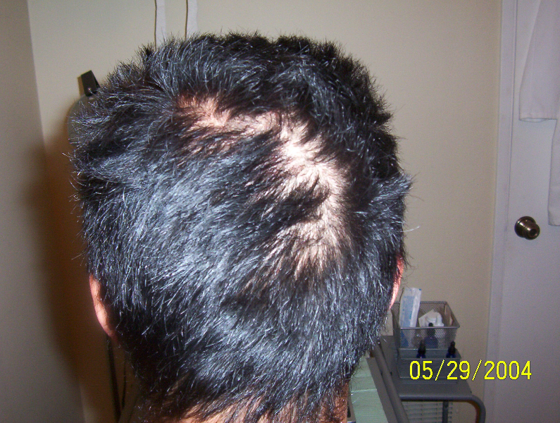Hair Loss Treatment Photos Before and After |