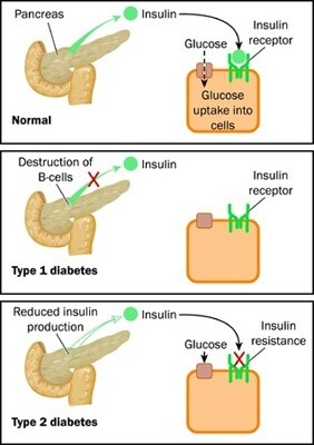 Diabetes management Houston